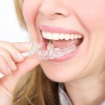 Clear Aligners available from our Belfast dentists at Braden.