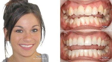 Get a Six Month Smile at Braden Dental Belfast
