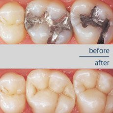 white-fillings-before-after